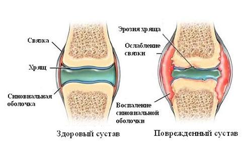 Псориатический артрит и ваше сердце - Артрит Победим!