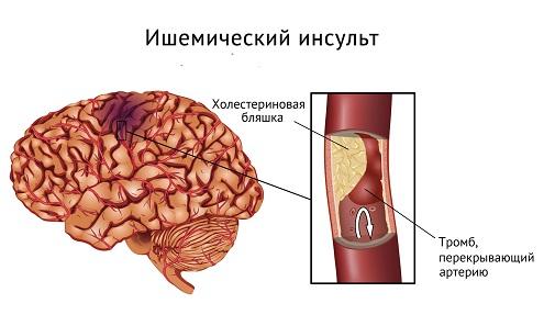 Ишемический инсульт: лечение