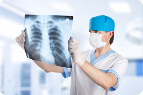 рентген при туберкулезе