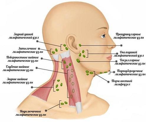 Фото воспаления горла у детей