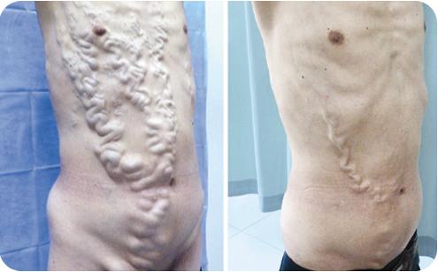 Лечение синдрома Бадда-Киари - Медицинский портал EUROLAB