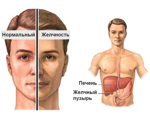 Лечение синдрома Жильбера - Медицинский портал EUROLAB