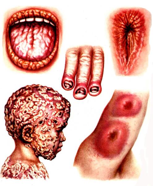 Что такое кандидозы кожи