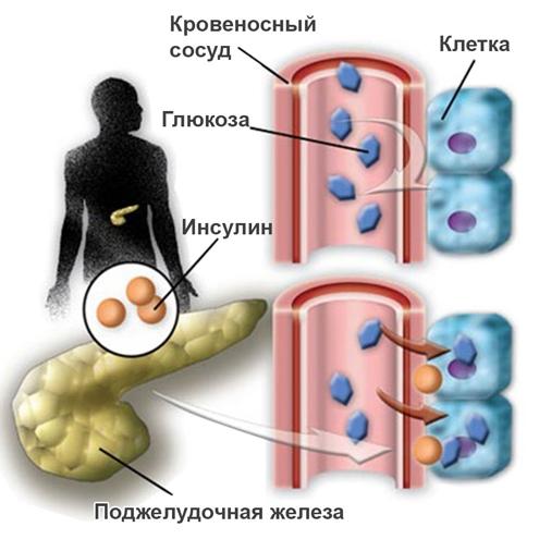 Несахарный диабет