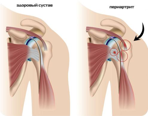 Периартрит плечевого сустава лечение препараты