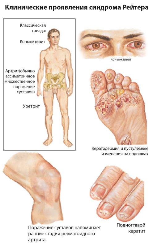 хламидийный конъюнктивит при болезни Рейтера