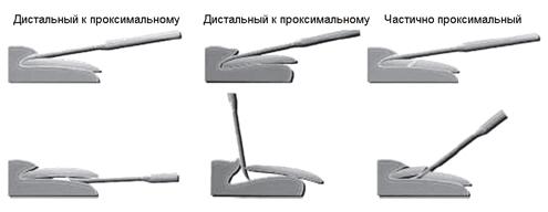 удаление ногтя